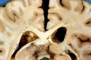 meningite tuberculosa