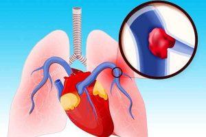 o que é embolia pulmonar