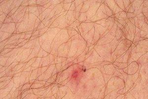 o que é febre maculosa do mediterrâneo ou febre boutonneuse