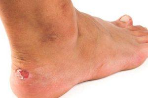 o que é ferida de pé ou unha em pé