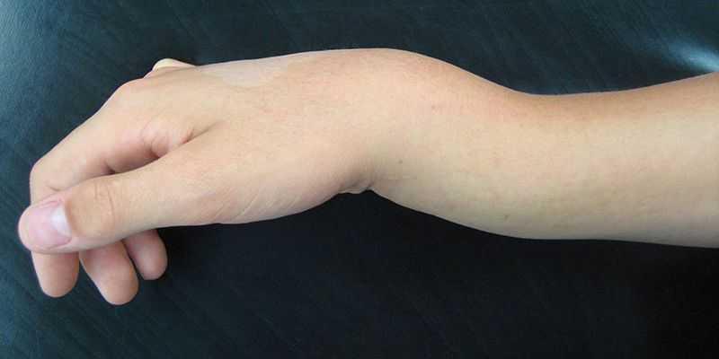 o que é fratura fechada do punho