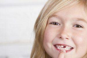 o que é hipodontia