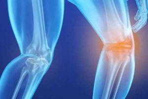 o que é infarto ósseo e como é tratado