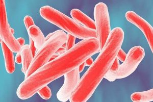 o que é infecção por tuberculose latente ou ltbi