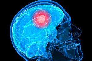 o que é o carcinoma do plexo coróide e como é tratado