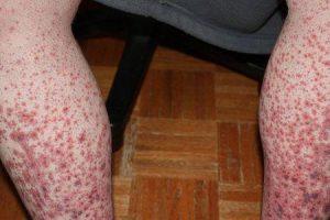 o que é púrpura trombocitopênica imunológica