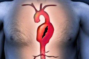 o que é uma cirurgia de aneurisma aórtico