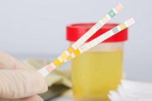 o que a proteína na urina indica