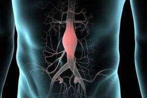 o que acontece quando um aneurisma da aorta rompe