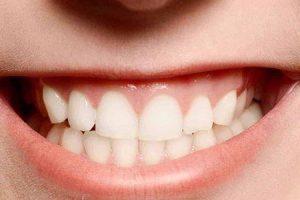 o que causa a moagem de dentes e formas de preveni-lo