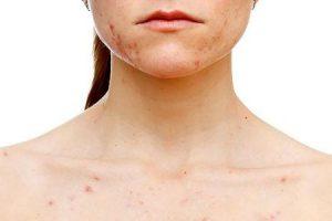 o que causa acne nas costas e ombros e como se livrar dele