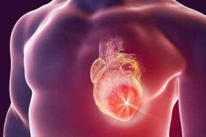 o que causa cardiomiopatia hipertrófica hcm