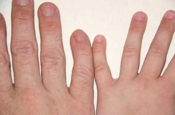 o que causa clinodactilia e como é tratado