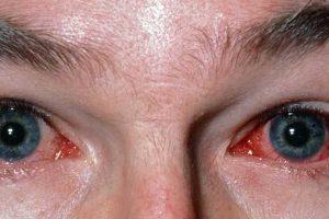 o que faz com que seus olhos se projetem e tratamento para olhos salientes