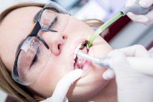 o que faz com que um dente precise de um canal radicular