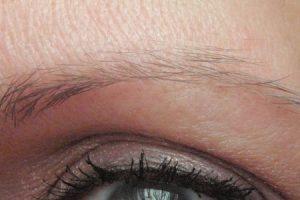 o que pode causar queda de cabelo nas sobrancelhas