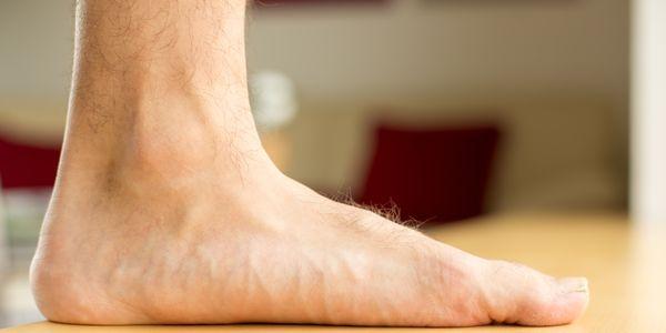 pés chatos ou pés planos ou arcos caídos