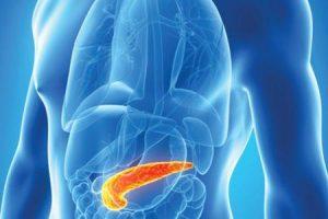 pancreatite
