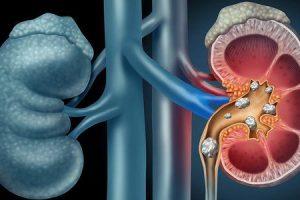 pedras nos rins ou cálculo renal