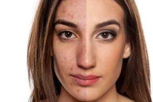 peróxido de benzoíla para limpar acne