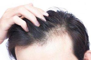 perda de cabelo em um lado da cabeça