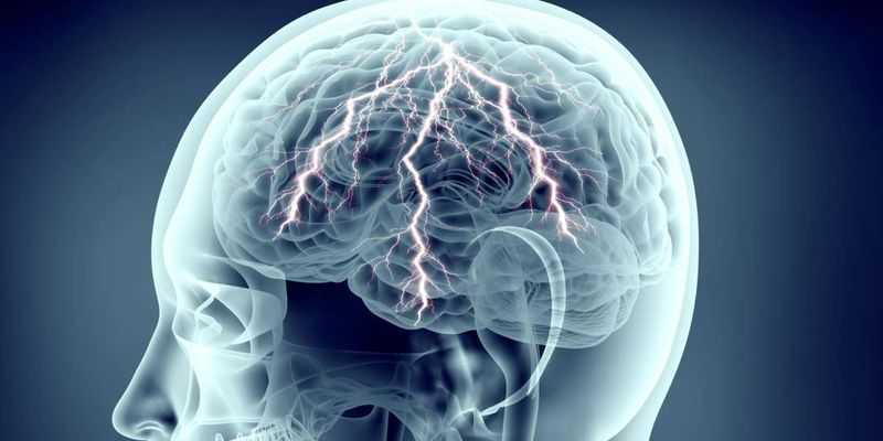 pode estresse levar a convulsões