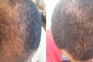 pode minoxidil regredir o cabelo