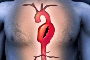pode um aneurisma da aorta desaparecer sozinho