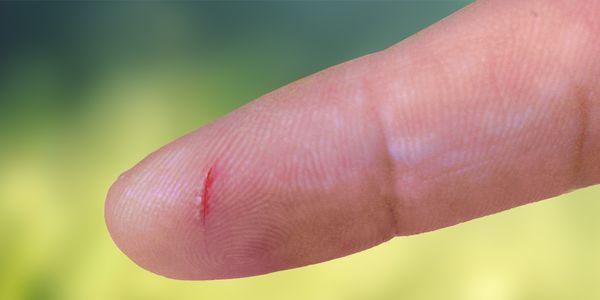 pontas dos dedos rachados