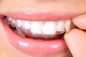 pontas para impedir a moedura dos dentes