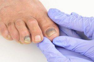 por que as unhas dos pés cheiram tão mal e como se livrar das unhas fedorentas