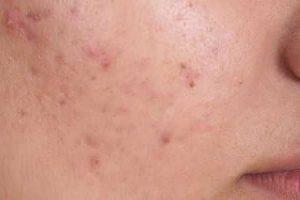 porque as pessoas ficam com acne
