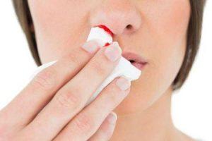 pressão alta pode causar hemorragias nasais
