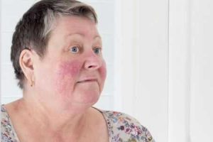 principais causas de pele avermelhada e maneiras de tratá-la
