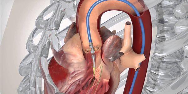 quão séria é a calcificação da aorta