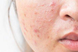 quais pílulas anticoncepcionais causam acne