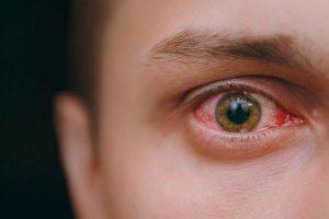 quanto tempo é olho-de-rosa contagioso para