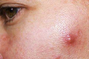quanto tempo dura a acne cística e a acne cística pode desaparecer sozinha