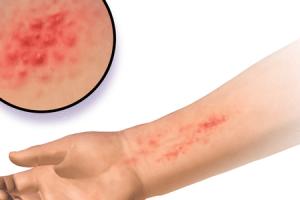 quanto tempo dura uma reação alérgica ao camarão