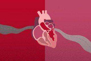 quanto tempo você pode viver com estenose da válvula aórtica grave