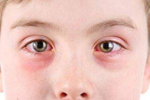 remédios caseiros para aliviar os sintomas de olho-de-rosa ou conjuntivite