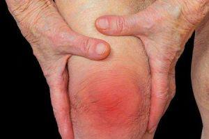 remédios caseiros para artrite são canela óleo de peixe gengibre cerejas açafrão