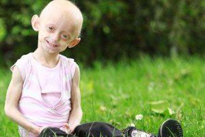 síndrome de hutchinson gilford progeria