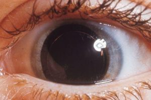 síndrome de weill marchesani