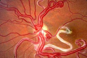 síndrome do pedreiro wyburn