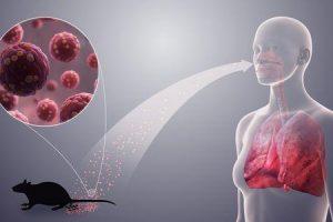 síndrome pulmonar por hantavírus hps