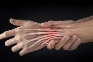 tendinite da articulação do punho