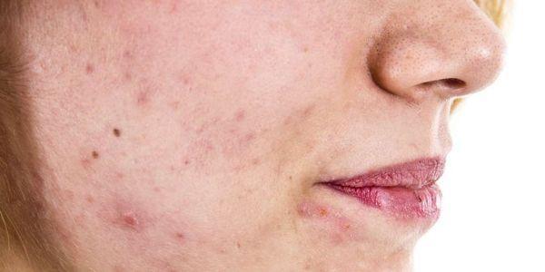 tratamento com testosterona do hipogonadismo induzido por opióides