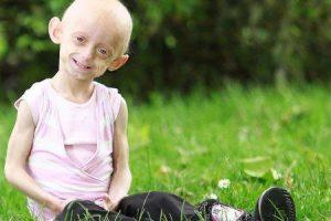 tratamento da síndrome da progeria mudanças no estilo de vida enfrentam o prognóstico