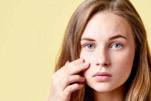 tratamento de acne na adolescência